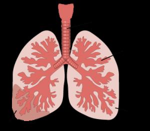 Obat pneumonia radang paru alami