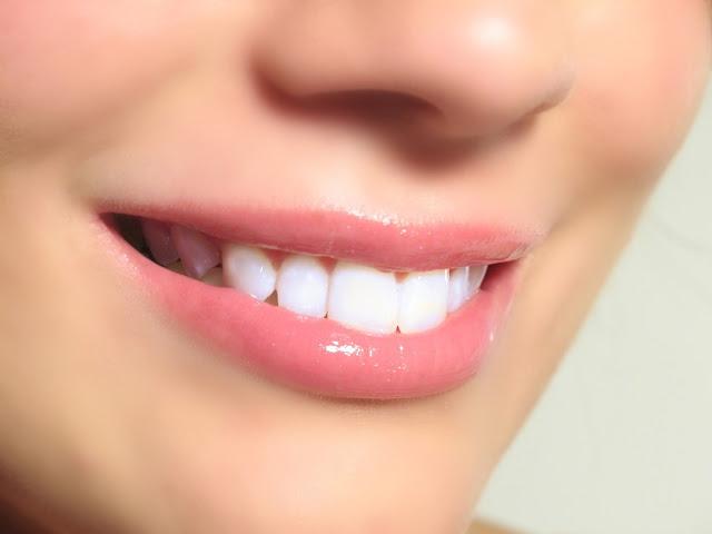 Cara Memutihkan Gigi Alami Dan Permanen