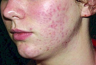 Reduce Hormonal Acne