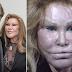 71 year old Billionaire 'Bride of Wildenstein' attacks 49 year old boyfriend with hot wax and scissors