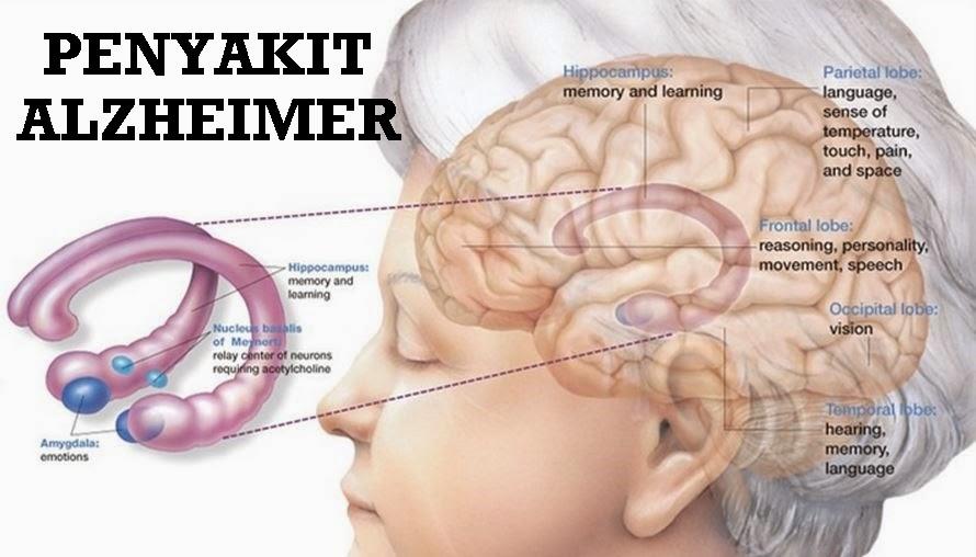 Apa Itu Penyakit Alzheimer Penyebab Gejala Pengobatan