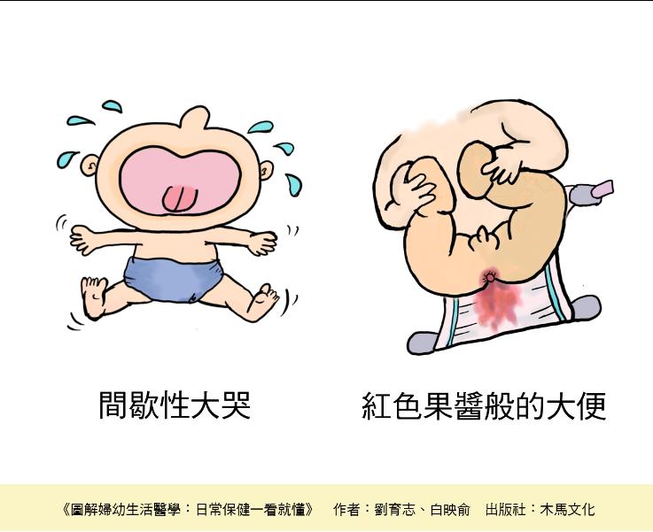 腸套疊常見的表現