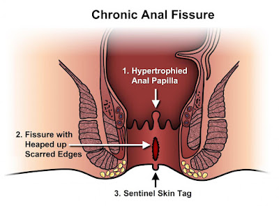 anal fissure homeopathy treatment in chennai