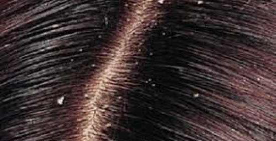 وصفة للتخلص من قشرة الشعر