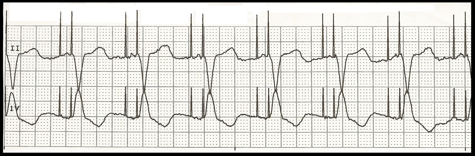 svt-ekg-strip