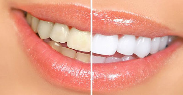 9 Petua Putihkan Gigi Secara Alami Serta Mudah