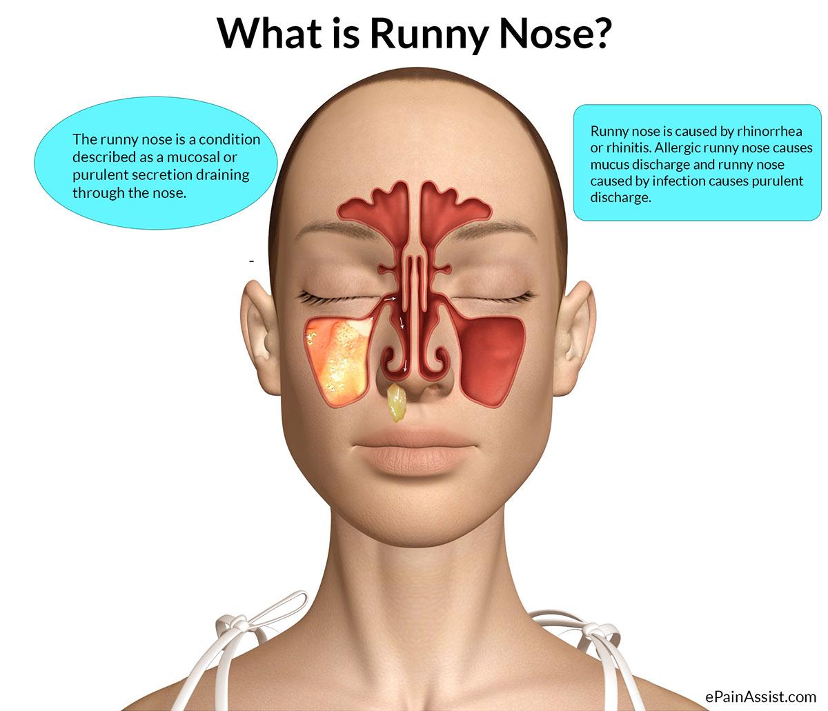 stuffy nose diagram theater greek bio 156 fall 2015 week 4 tissues skin membranes lab