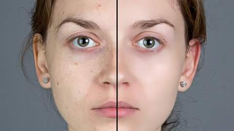 Image result for चेहरे के सभी दाग दब्बो