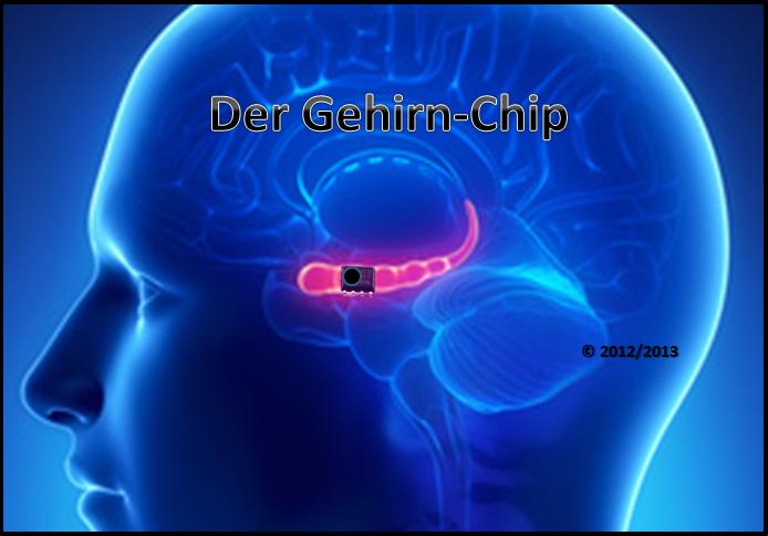 Chip Im Gehirn