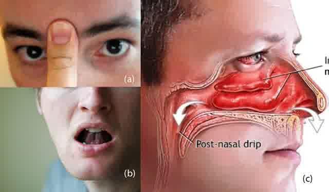Cara Mengatasi Flu dan Hidung Tersumbat Dengan Seketika