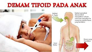 Mengobati dan Mencegah Penyakit Demam Tifoid