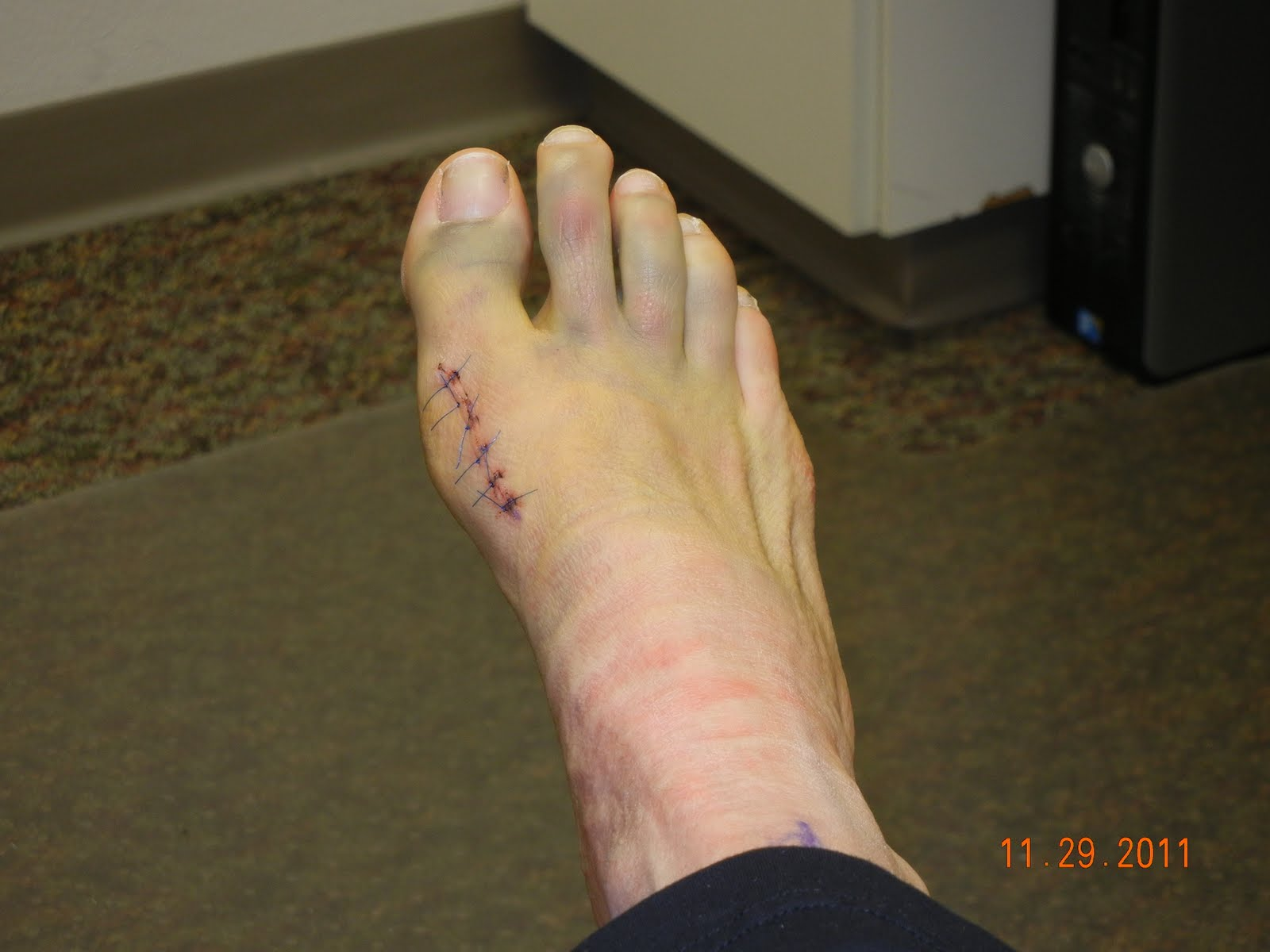 Downs Bunion Surgery 11.17.2011 Hallux Valgus Deformity with Metatarsal  Osteotomy - Screw Fixation: Day 12 - 2nd Post Op Visit (Photo Gallery -  Stitches Out)