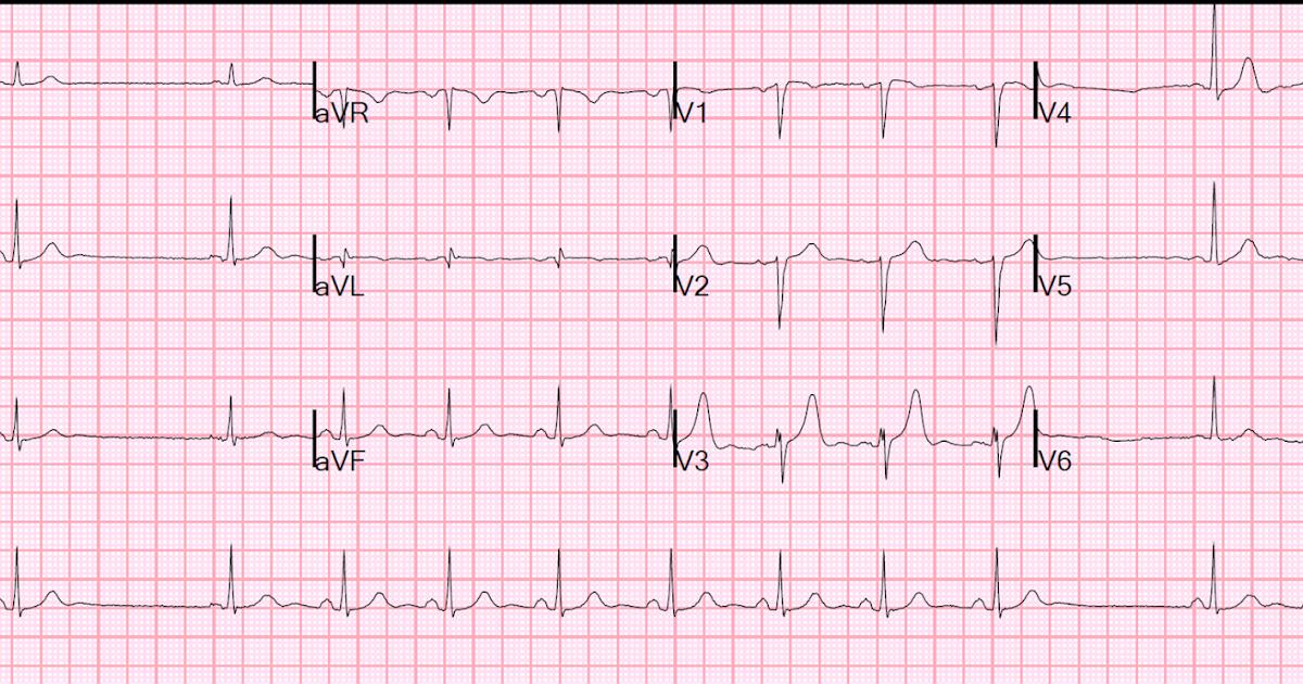how long is a cardiac pause