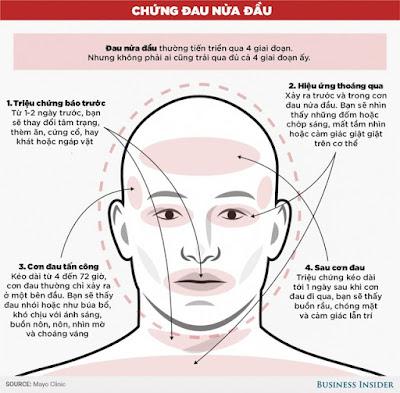 Phân biệt cơn đau nửa đầu và cơn đau do u não