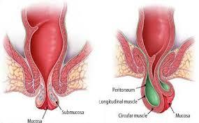 Cara Mengatasi sakit perut serta BAB keluar darah