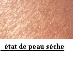 Remèdes naturels de la  peau sèche qui démange