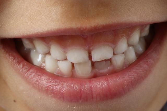 आप अपने दांतों की बेहतरी के लिए क्या करें