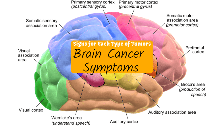 Brain Cancer Symptoms and Signs for Each Type of Tumors ...
