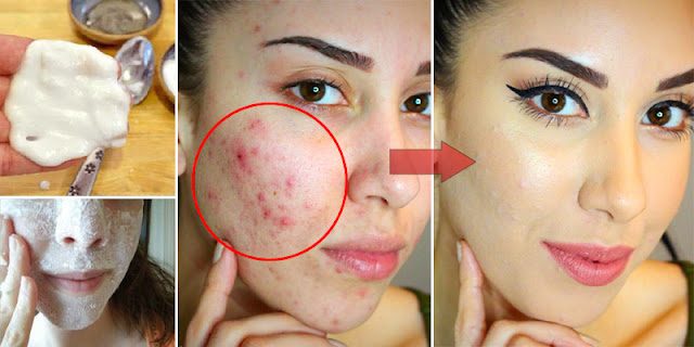 See How This Women Remove Acne And Spots In Just 10 Minutes, But How?