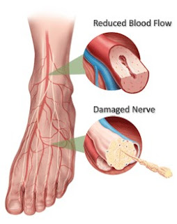 Diabetic Neuropathy and Diabetic Vascular Disease