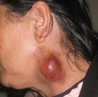 obat herbal untuk pembengkakan kelenjar getah bening pada leher