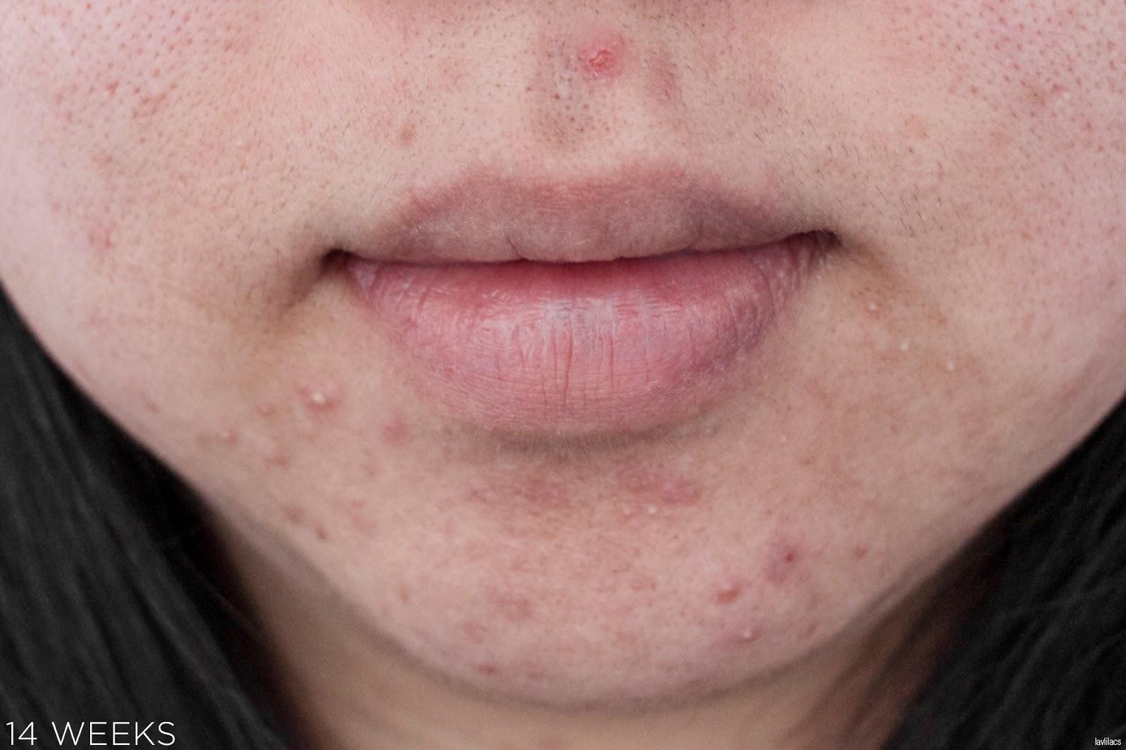 tria Hair Removal Laser Facial Hair 14 Weeks, 3 months Closeup