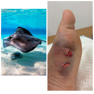 Deadly Stingray attack