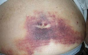 hematoma disease,symptoms of hematoma,how treat hematoma,is hematoma dangerous