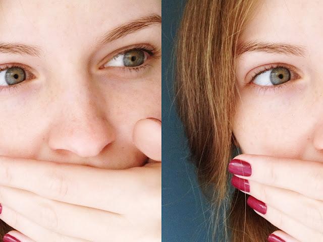 łuszcząca się skóra na nosie