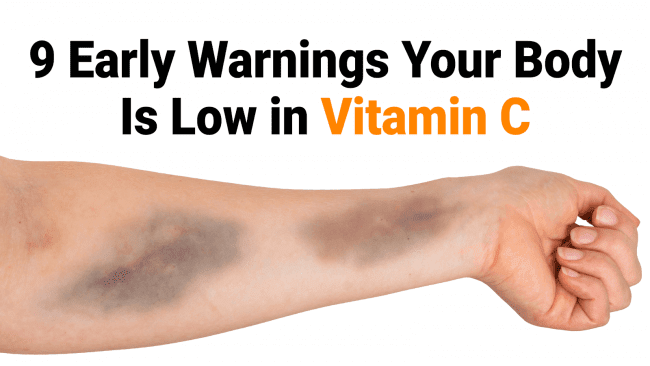 Warnings Your Body Is Low in Vitamin C