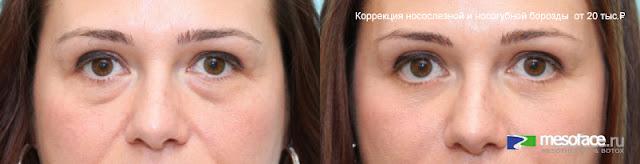 коррекция филлерами носослёзной и носогубной борозды до и после отзывы
