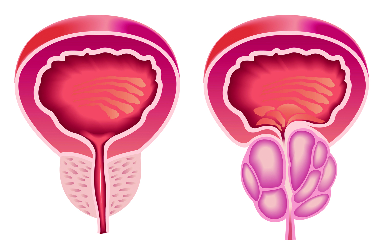 fisioterapia para agrandamiento de la próstata