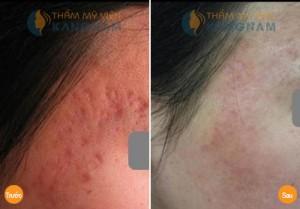 tri seo tham Trị sẹo thâm đỏ trên mặt như thế nào cho hiệu quả