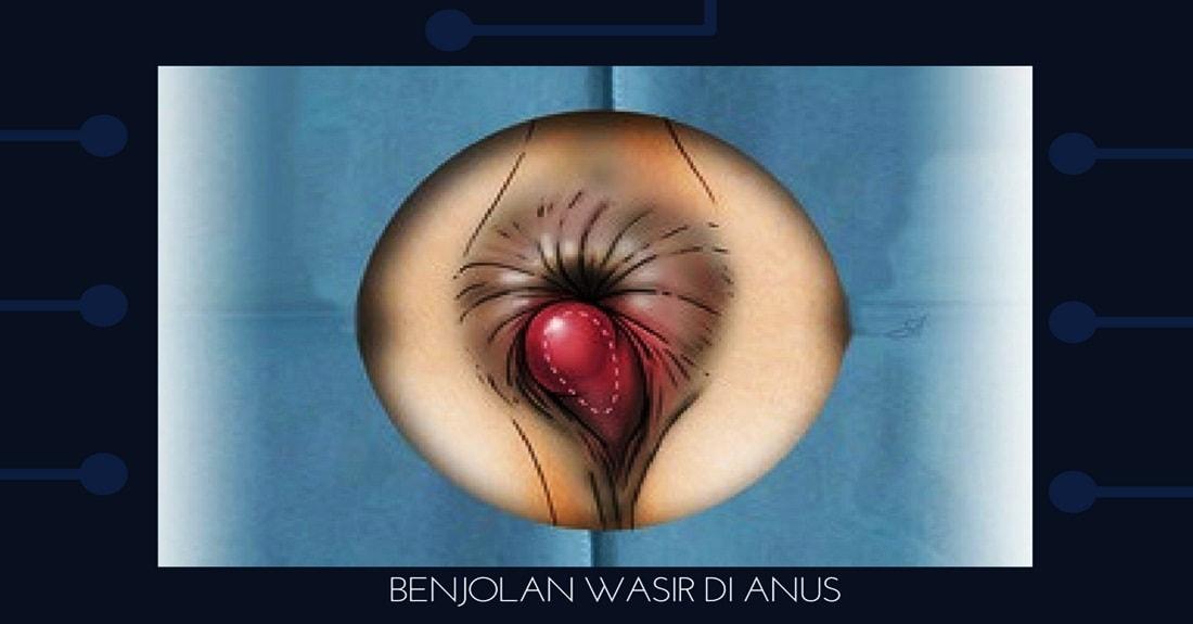 Benjolan Wasir ambeien di Anus
