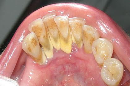 Cara Mencegah Karang Gigi Agar Tidak Menumpuk Pada Gigi