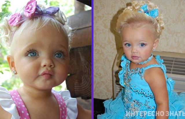 Помните эту девочку с кукольным лицом? Теперь ее не узнать…