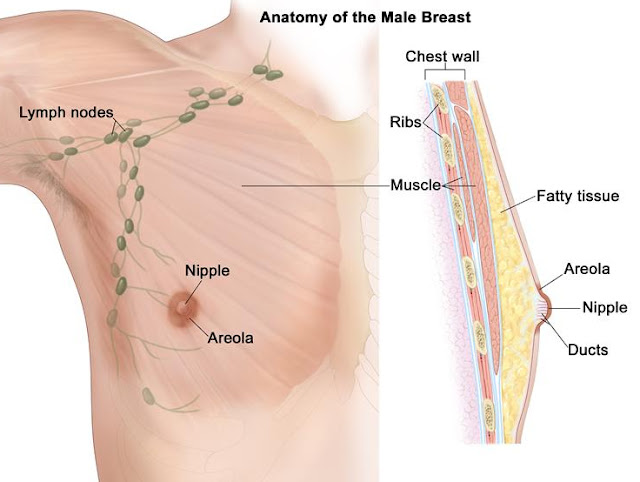 inflammatory breast cancer pictures