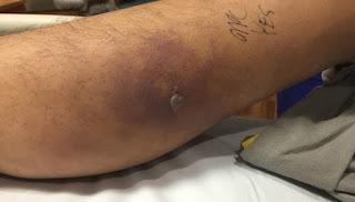 Seorang Pria Meninggal Setelah Berenang Dengan Tattoo Barunya
