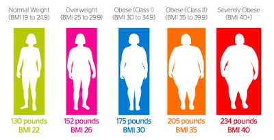 Obesity BMI