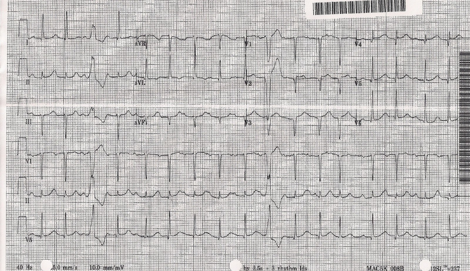 Ecgs For Ems March