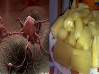 Tidak Perlu Operasi Dan Kemoterapy !! Rahasia Obat Ajaib Kanker Ternyata Ada di Sekitar Kita, Banyak Sembuhnya Setelah Baca Info Ini !!! Coba Dan Tolong Disebar Kan.