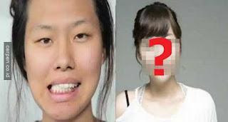 Wanita Ini Operasi Plastik Karena Suaminya dan Ternyata Ini Hasilnya!!