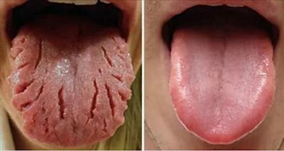 Daily_Health_Tips_Tongue Diagnosis