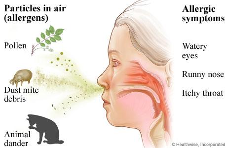 how to help cat fur allergies