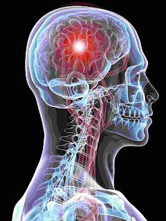 avoid stroke naturally