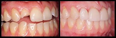 trám răng bị gãy có được không -4
