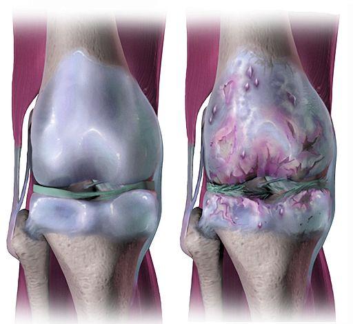 Penyebab osteoartritis
