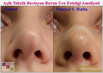 Risks and complications in nose tip plasty - The possible risks and complications for nasal tip plasty - Revision tip plasty operation in İstanbul - Revision tip plasty operation in Turkey - Revision nasal tip rhinoplasty in İstanbul - Cosmetic surgery of the nasal tip in İstanbul