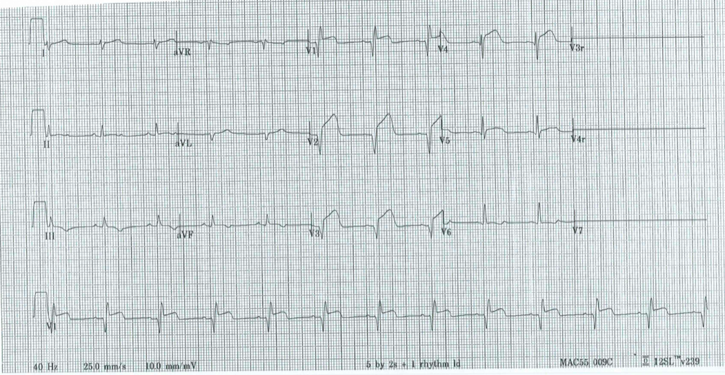 Dr. Smith's ECG Blog: An 8 year old with diarrhea