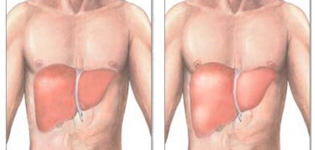 تضخم الكبد وأعراضه